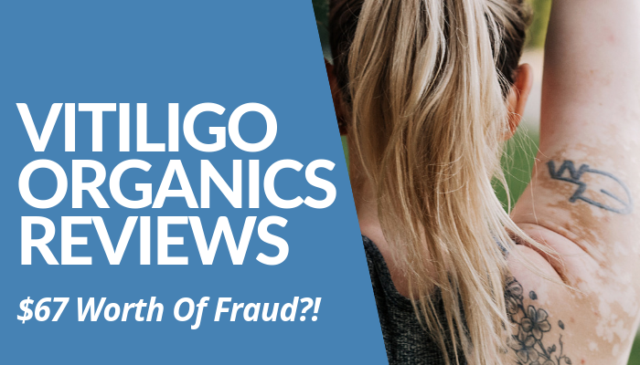 Read My Vitiligo Organics Reviews Post Before You Invest In Scammy Organic Product From Australia. Description Lured People To Spend Without Effects. Read More.